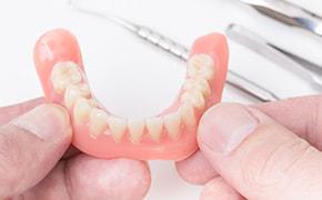 一流歯科技工士と連携したアフターフォロー