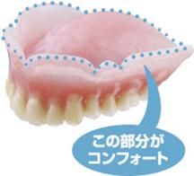 入れ歯の新技術  コンフォート Comfort