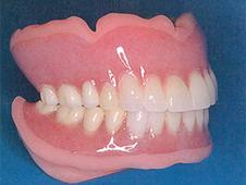 やわらかい入れ歯 ループ・シリコーン義歯 Loop Silicone