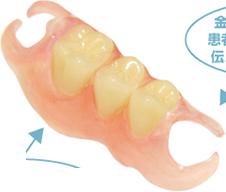 金属を使わない目立たない入れ歯 ノンクラスプデンチャー Non Clasp Denture